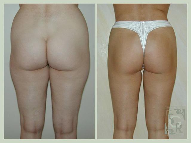 liposuccion des hanches et des fesses
