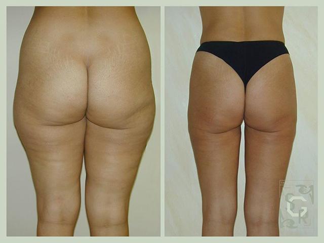 liposuccion hanche fesses jambes et cuisses