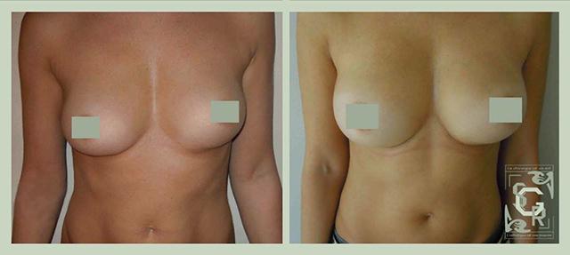augmentation mammaire à lyon